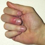 爪周囲炎ってどんな病気?症状や原因、治療方法を紹介!自然治癒する?