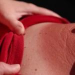 日焼けを治す方法は?体の外側と内側からの治し方を紹介!注意点はなに?