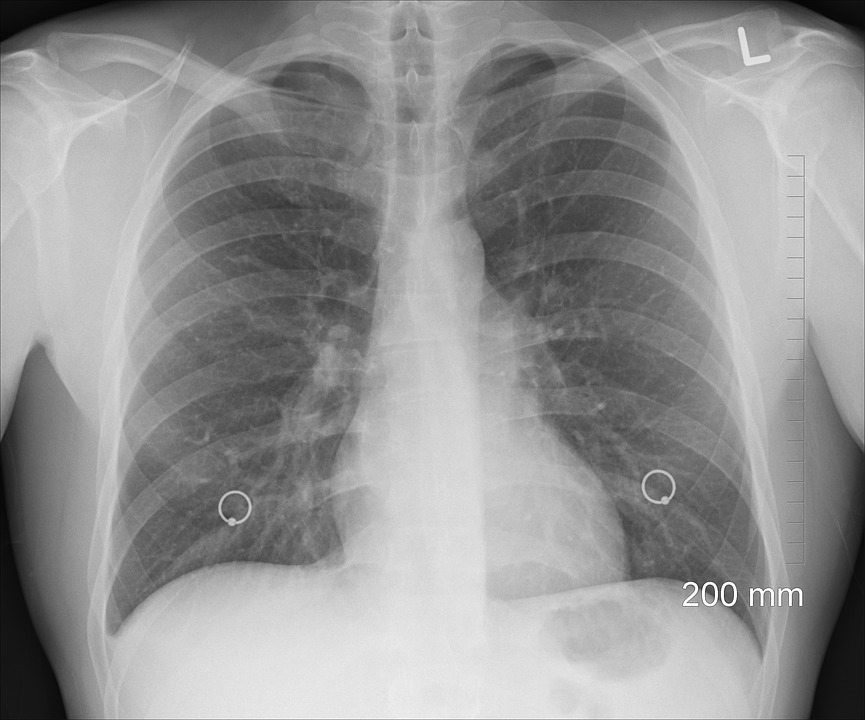 肺レントゲン