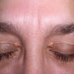 眼瞼黄色腫とは?症状・原因・治療法・検査方法を紹介!