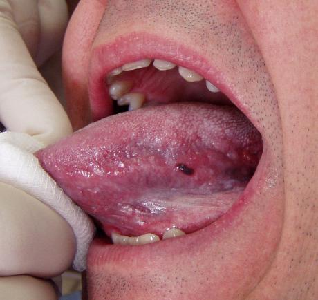 舌に黒い点が出来た!原因や症状、舌の色で分かる健康状態を知ろう! Hapila ハピラ