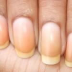 爪が変色するのは病気?色別に考えられる原因や症状、治療法を紹介!