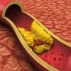 脂質異常症とは?症状や原因、診断基準について紹介!治療する方法は?