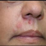 帯状疱疹の初期症状を知ろう!原因や検査法、治療法も紹介!