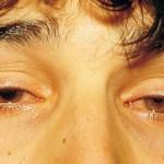 プール熱に大人がかかったら症状はかわる?対処法や治療法を紹介!