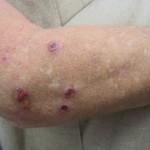 結節性痒疹とは?症状や原因、治療法や予防法を紹介!注意点はなに?