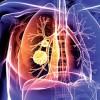 肺mac症とは?症状・原因・治療法・予防法を知ろう!結核との違いは?
