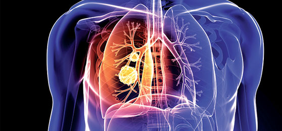 肺mac症