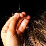 抜毛症とは?症状や原因、関係のある病気を紹介!治療するにはどうする?