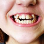 歯並びは遺伝する?原因と治療法、歯並びが悪いデメリットを紹介!