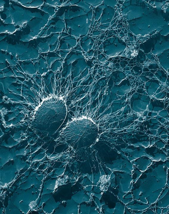 bacteria-67791_960_720