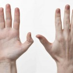 手が乾燥する原因を知ろう!悪化することで起きる病気と対処方法は?