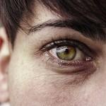 眼球に傷がつく8つの原因とは?目薬が危険な時もある?対処法や治療法も紹介!