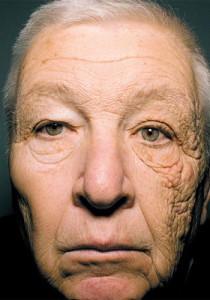 紫外線 老化