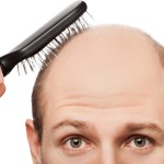 【夢占い】禿げる夢を見た!その意味や深層心理を知ろう!